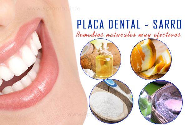 Placa dental, conoce y aplica estos remedios naturales muy efectivos