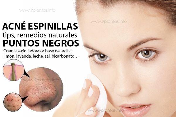 Elimina puntos negros con cremas exfoliadoras naturales