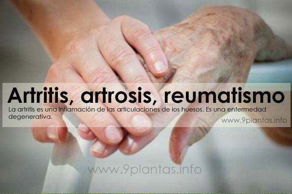 Artritis, artrosis, reumatismo