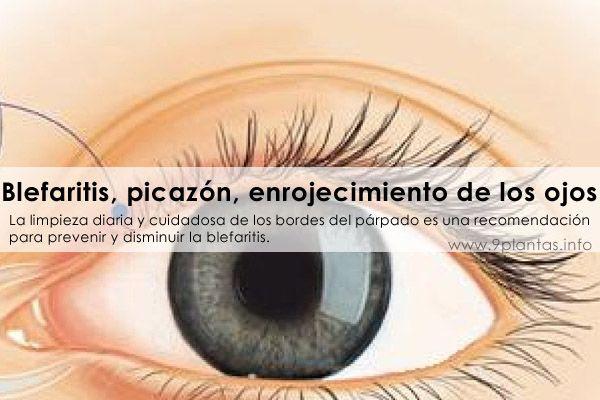 Blefaritis, picazón, enrojecimiento de los ojos