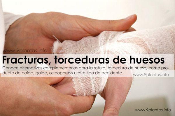 Fracturas, torceduras de huesos
