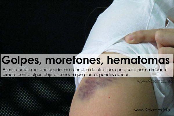 Golpes, moretones, hematomas