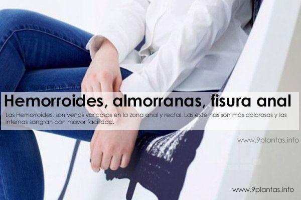 Hemorroides, almorranas, fisura anal