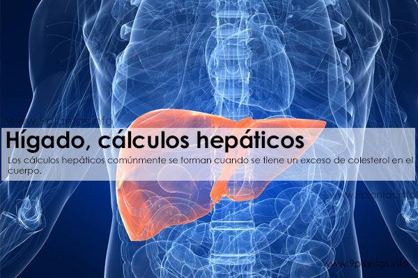 Hígado, cálculos hepáticos