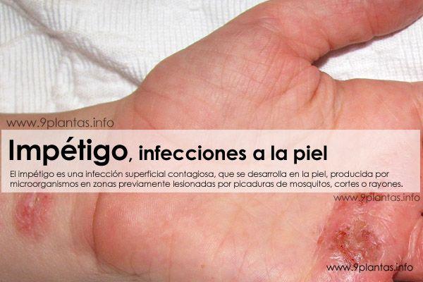Impétigo, Dermatitis, infecciones a la piel