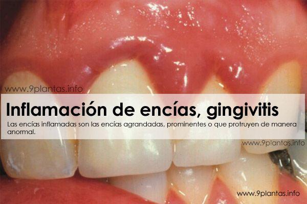 Inflamación de encías, gingivitis
