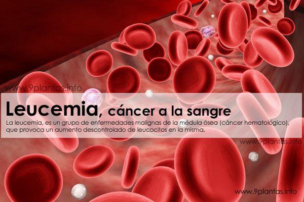 Leucemia, cáncer a la sangre