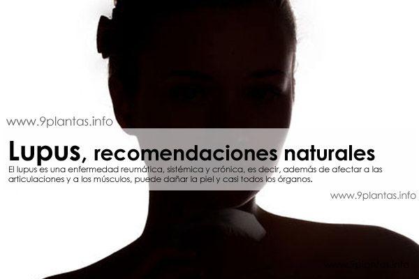 Lupus, recomendaciones naturales