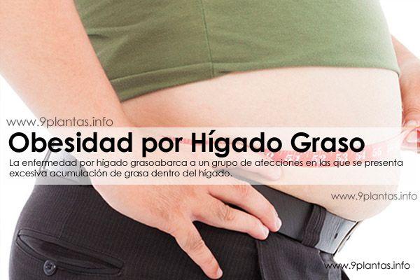 Obesidad por higado graso