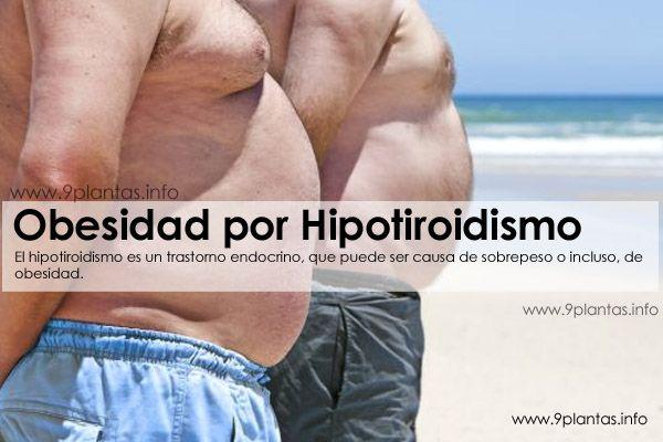 Obesidad por Hipotiroidismo