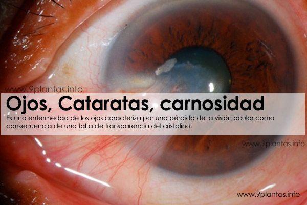 Ojos, Cataratas, carnosidad