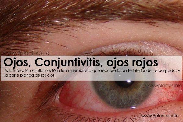 Ojos, Conjuntivitis, ojos rojos