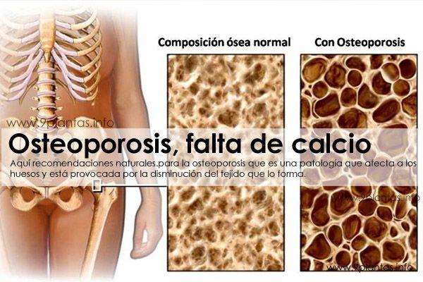 Osteoporosis, falta de calcio