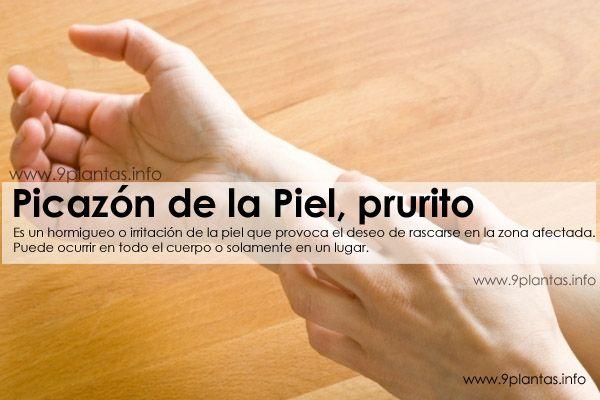 Picazon, comezon en piel, prurito
