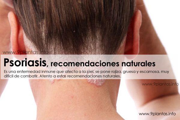 Psoriasis, recomendaciones naturales
