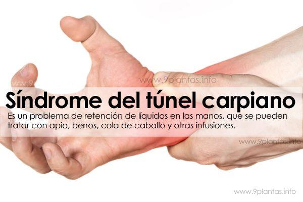 Síndrome del túnel carpiano, recomendaciones naturales