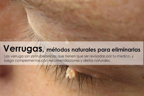 Verrugas, métodos naturales para eliminar verrugas