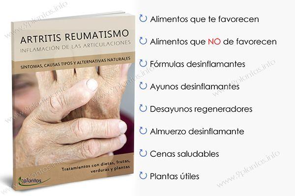 E-book | Artritis reumatismo, inflamación de las articulaciones