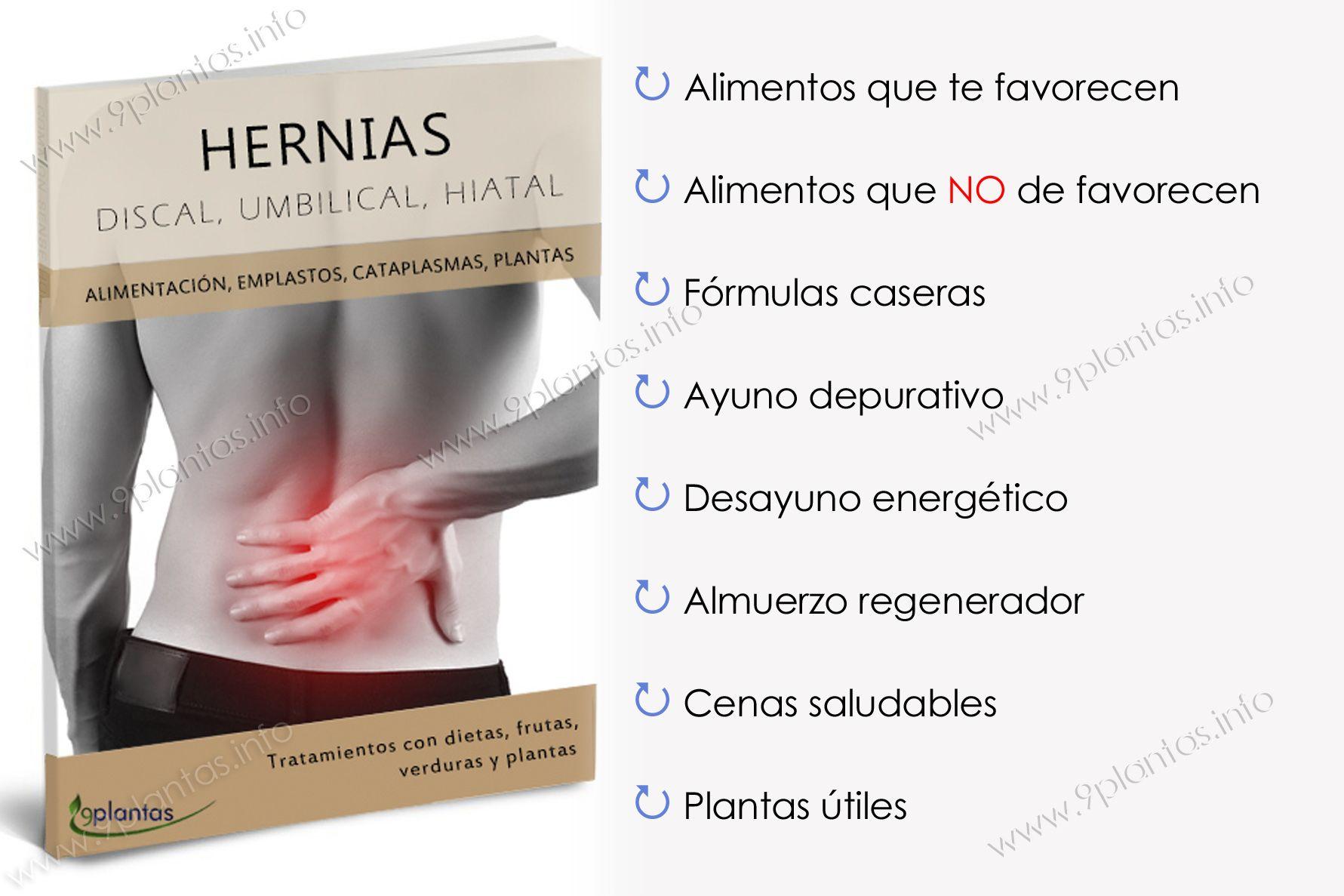 E-book | Hernias; discal, umbilical, hiatal