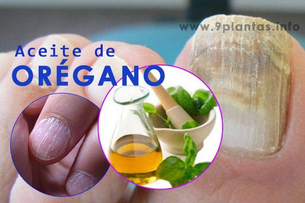HONGOS UÑAS una maravillosa fórmula con aceite de orégano