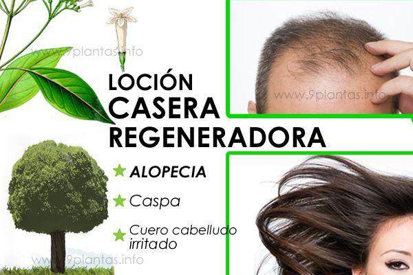 Loción capilar casera para prevenir y tratar la caída de cabello