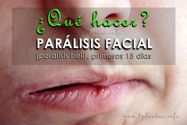 Parálisis facial primeros 15 días (parálisis bell)